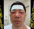【動画あり】宮迫博之、美容整形から2週間のビフォーアフター公開 手術直後の腫れ&炎症だらけな顔に